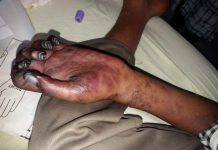 boy lost his hand palm when homeopathy doctor injected in brachial artery