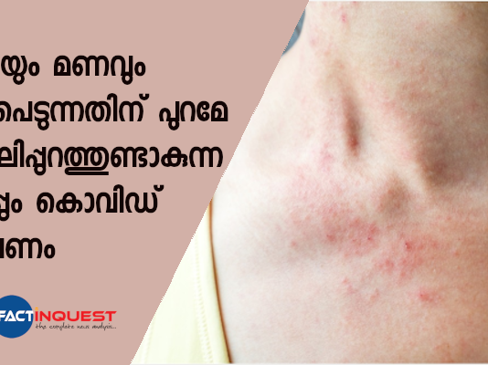 Skin rash a likely symptom of COVID-19 infection in untested symptomatic patients, claims study